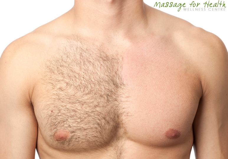 hair removal calgary